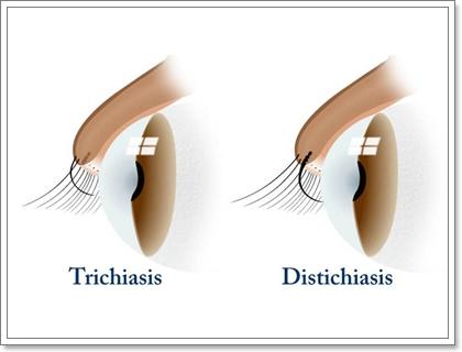 Dogilike.com :: ความผิดปกติของขนตา...ปัญหาสำคัญของน้องหมาพันธุ์ชิสุ