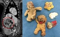 สัตวแพทย์อึ้ง! ผ่าท้องน้องหมาคิดว่ามีเนื้องอก สุดท้ายพบตุ๊กตา 4 ตัว